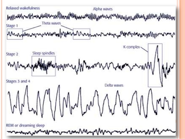 physiology-of-sleep-and-eeg-for-undergraduates-19-638
