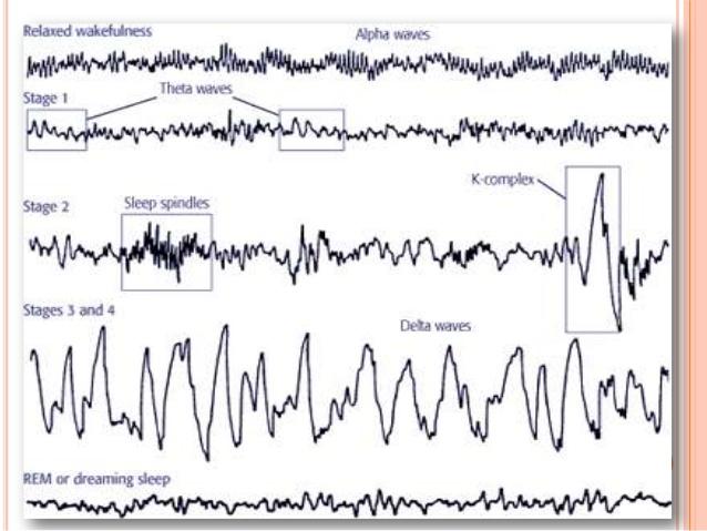 physiology-of-sleep-and-eeg-for-undergraduates-19-638